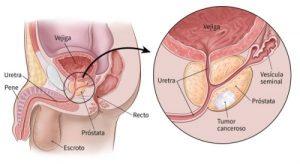 próstata 8 77 sin dolor