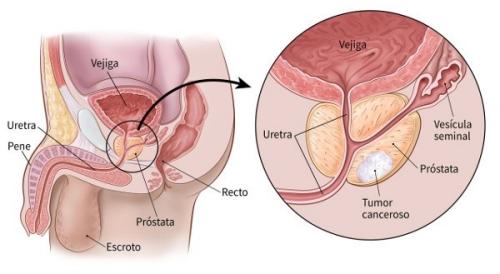 Qu Es El Cncer De Prstata - El Blog De Ch Salud-2920