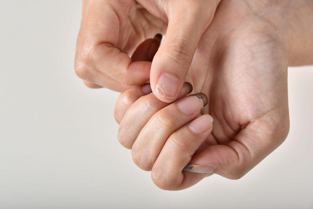 A que es debido las uñas en capas