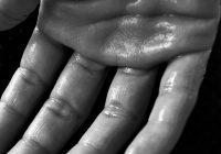 CH Salud: qué es la hiperhidrosis